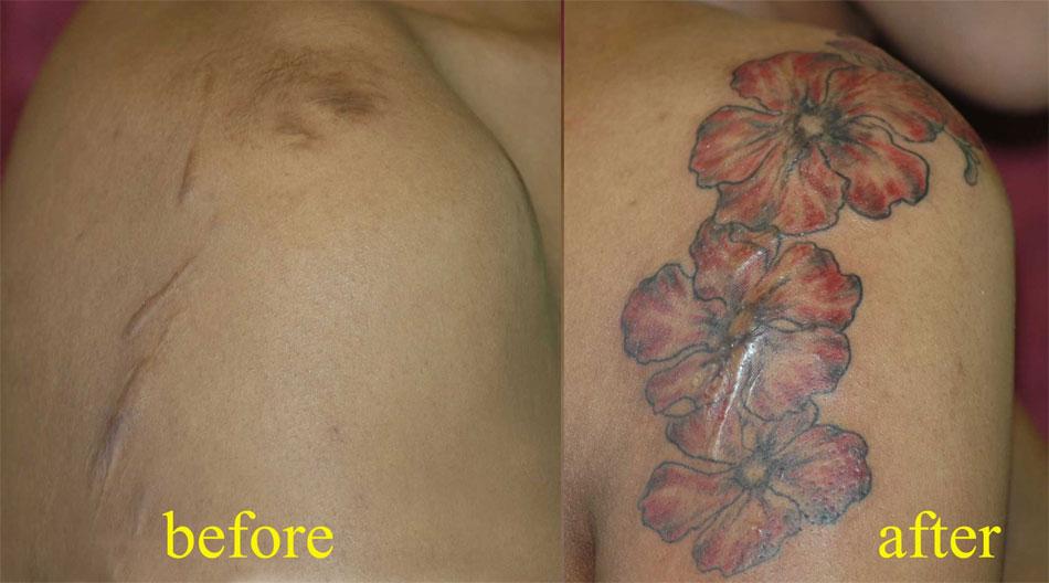 Cacher une cicatrice avec un tatouage
